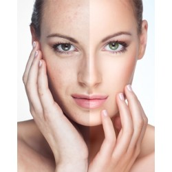 La cura del viso